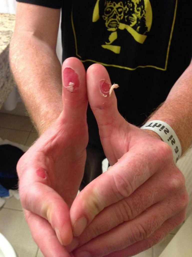 Drumming Blisters